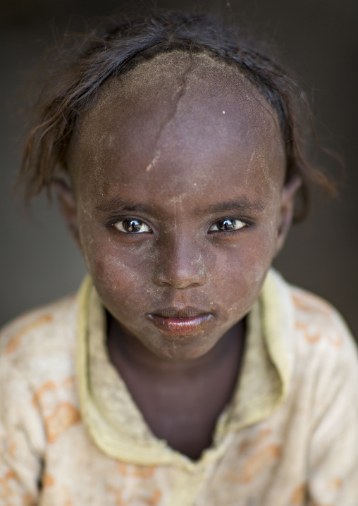 Afar Tribe Girl With Tonsure On The Head To Protect Her From The Bad Spririts, Afambo, Ethiopia