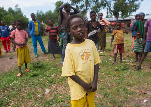 Ethiopian boy called abushe with blue eyes suffering from waardenburg syndrome, Omo valley, Jinka, Ethiopia
