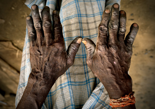 Calloused Hands Of A Blacksmith In Pondicherry, India