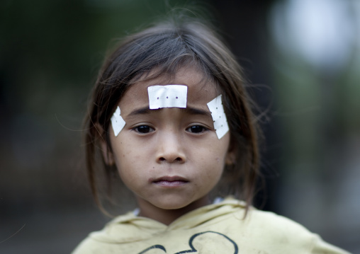 Ill khmu minority child with traditional medicine on the face, Xieng khouang, Laos