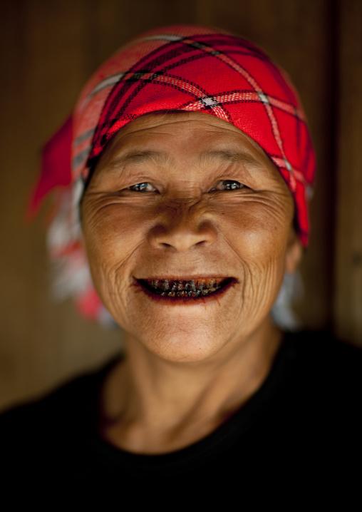 Akha minority woman with black teeth, Muang sing, Laos