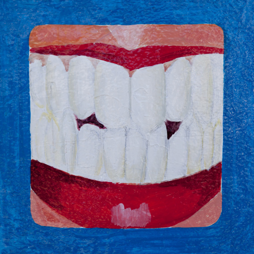 A painted advertisement sign for a dentist depicting a mouth and teeth on a blue background, Boorama, Somaliland