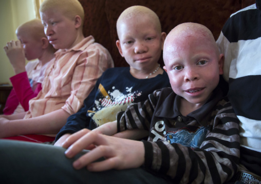 Tanzania, East Africa, Dar es Salaam, albinos teens and children with albinism at under the same sun house