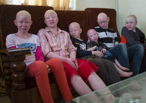 Tanzania, East Africa, Dar es Salaam, teens and children with albinism at under the same sun house