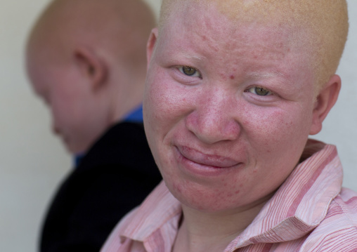 Tanzania, East Africa, Dar es Salaam, jenipher stanford a teen with albinism at under the same sun house