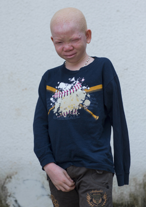 Tanzania, East Africa, Dar es Salaam, mwigulu matonange a boy with albinism at under the same sun house, some men hacked off his left arm with a machete