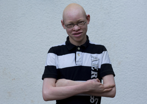 Tanzania, East Africa, Dar es Salaam, adam robert a boy with albinism at under the same sun house, he had three fingers cut
