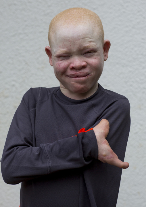 Tanzania, East Africa, Dar es Salaam, emmanuel festo a boy with albinism at under the same sun house, his left arm
