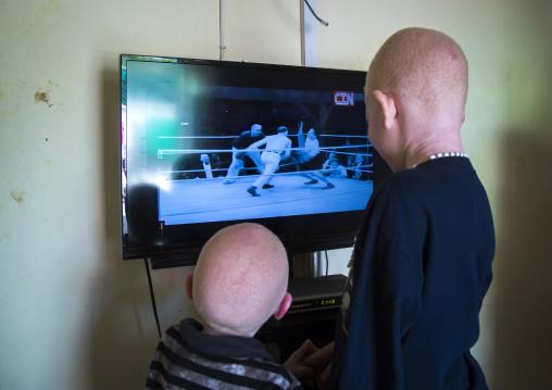 Tanzania, East Africa, Dar es Salaam, albinos children watching television at under the same sun house