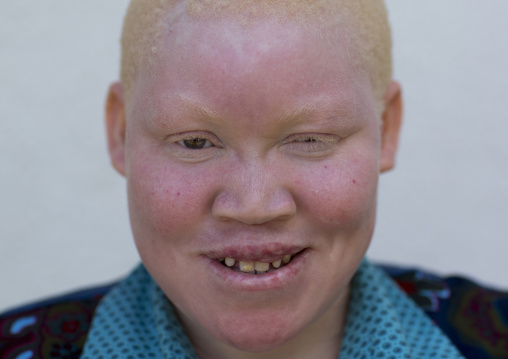 Tanzania, East Africa, Dar es Salaam, kulwa lusana a girl with albinism at under the same sun house, she lost one hand