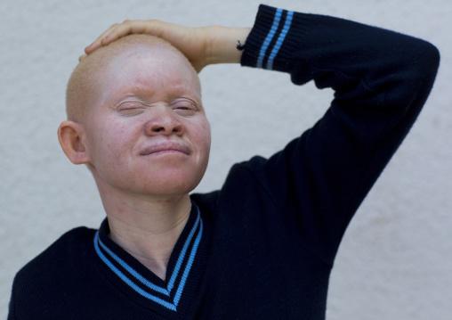Tanzania, East Africa, Dar es Salaam, miss kabula ngarango a girl with albinism at under the same sun house